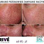 usuwanie przebarwien zamykanie naczynek Gdansk PRIVE Beauty Hair