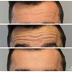 Korekta zmarszczek poziomych czoła botoksem