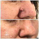 Usunięcie brodawek okolicy nosa