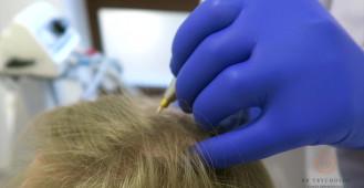 Kriomasaż skóry głowy - leczenie wypadania włosów i łysienia