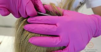 Trichogram - badanie włosów