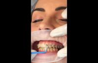 Mocowanie zamków do aparatu ortodontycznego