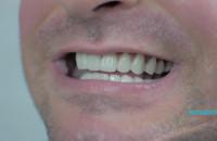Implanty/licówk i- Euredent Gdańsk