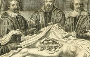 400 lat temu w Gdańsku odkrywano, co człowiek ma w środku