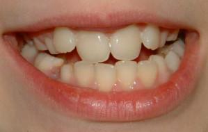 Wraca lakowanie zębów u dzieci