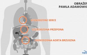 Jakie rany odniósł Paweł Adamowicz