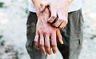 Atopowe zapalenie skóry to nie defekt kosmetyczny! Eksperci apelują o zmianę podejścia