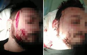 Atak nożownika po protestach w Gdyni