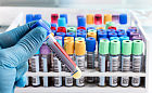 Testy na przeciwciała koronawirusa SARS-CoV-2. Dla kogo i czy warto?