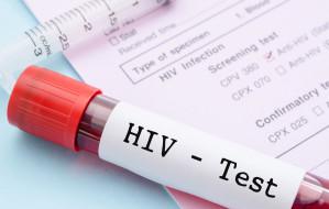 Bezpłatnie i anonimowo przebadaj się na HIV i HCV