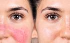 5 sposobów na trądzik różowaty, popękane naczynka i rumień na twarzy