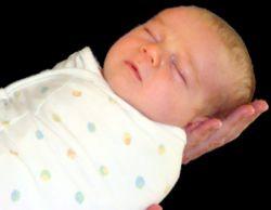AZS zwykle ujawnia się w ciągu pierwszych 6. miesięcy życia.
