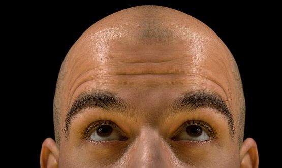 Łysa głowa, choć bywa odbierana jako symbol mądrości a także jako dodająca uroku, dla większości z nas jest czymś wstydliwym.