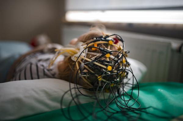 Istnieje cała grupa łagodnych zespołów padaczkowych, które rozpoczynają się w określonym okresie rozwoju i potem w określonym momencie ustępują. Bywa, że chory w ciągu całego życia ma dwa napady i obydwa w nocy - mówi dr. hab. Maria Mazurkiewicz-Bełdzińska z Kliniki Neurologii Rozwojowej Katedry Neurologii GUMed.