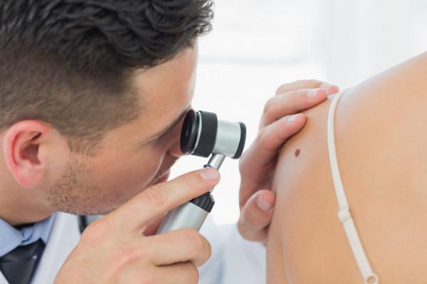 W leczeniu raka skóry najlepsze efekty daje profilaktyka, dlatego warto badać się regularnie, nie czekając, aż na ciele pojawią się zmiany wzbudzające nasz niepokój.