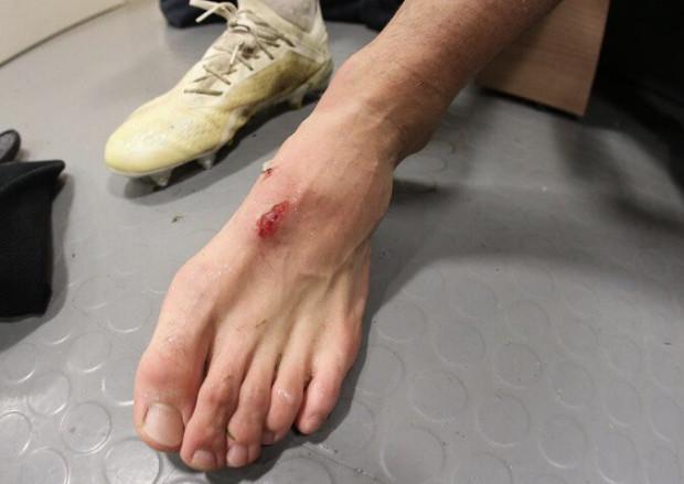 Tak wyglądała stopa Lukasa Haraslina po faulu Martina Pospisila.