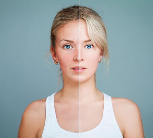 Nagle występujące problemy skórne bardzo często są objawem problemów zdrowotnych bądź alergii pokarmowych.