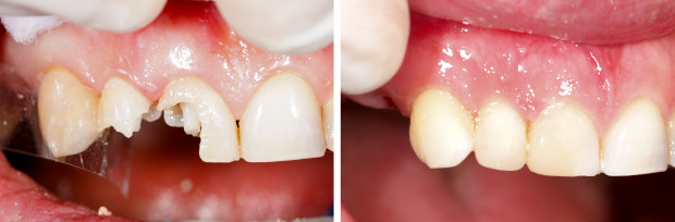 Ukruszony czy złamany ząb nie musi oznaczać tragedii - w wielu przypadkach dzięki postępowi, jaki nastąpił w medycynie i nieprzeciętnym umiejętnościom lekarzy udaje się piękny uśmiech przywrócić.
