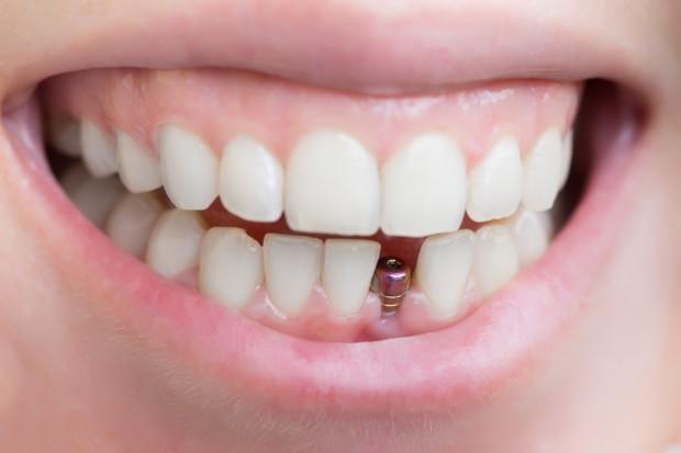 Implantologia to wciąż rozwijająca się nauka, pozwalająca na odtworzenie zębów utraconych w wyniku urazów, uszkodzeń lub niewłaściwego dbania o higienę jamy ustnej. Z biegiem lat implanty zębów stają się coraz popularniejsze i coraz bardziej dostępne dla dużego grona pacjentów, ze względu na większe zainteresowanie nimi oraz zmniejszającą się cenę zabiegów implantologicznych.