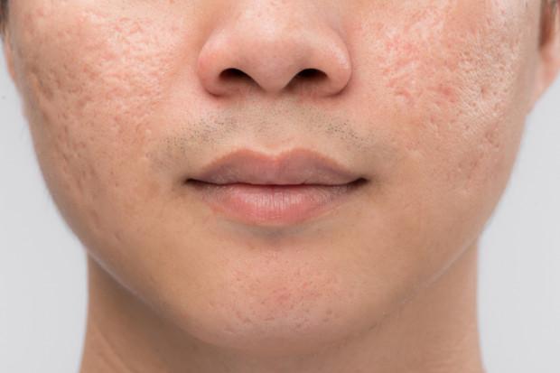 Rozdrapywanie i wyciskanie zapalnych zmian trądzikowych może doprowadzić do powstania blizn.