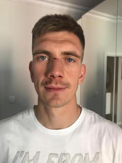 Michał Nalepa po zabiegu złamanego nosa.