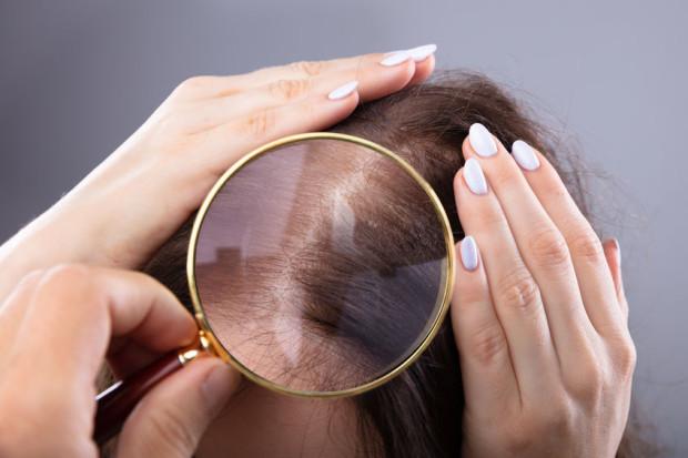 Wypadanie lub zła kondycja włosów mogą mieć wiele przyczyn.