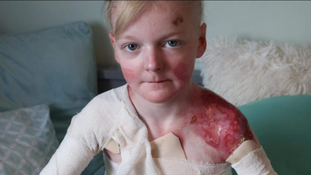 12-letnia Zosia zmaga się z bolesną chorobą EB.