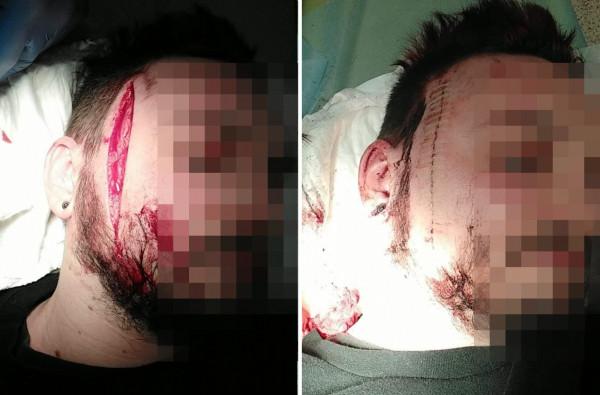 Mężczyzna z głęboką raną trafił do szpitala. Po jej zszyciu został wypisany.