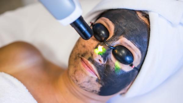 Laserowy peeling węglowy wykonuje się przy użyciu wysokoenergetycznego lasera.