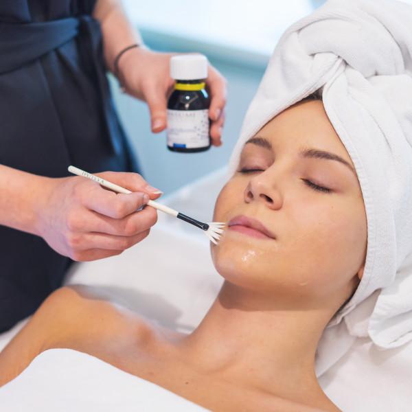 Kwasy, czyli związki eksfoliacyjne, osłabiają wiązania między komórkami skóry. Tego rodzaju zabiegi są nazywane peelingami chemicznymi i polegają na kontrolowanym złuszczaniu naskórka.